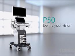 SonoScape P50 产品视频